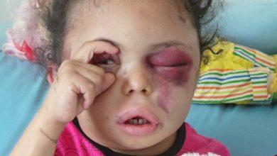 Photo of سعودی جیل سے یمنی بچی کی ایک سال بعد رہائی