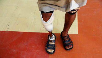 Photo of یمن میں بڑھتی معذوروں کی تعداد ۔