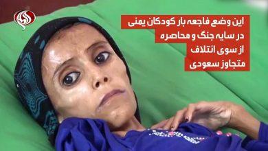 Photo of انسانیت شرمسار، یمن کی 12 سالہ بچی، 10 کیلو وزن + ویڈیو