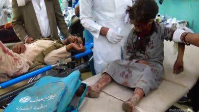 Photo of یمن، صنعا پر سعودی جارحیت 77 عام شہری شہید و زخمی