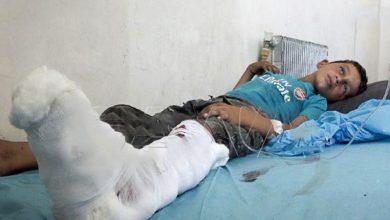 Photo of شام میں 18 بچے جاں بحق و زخمی