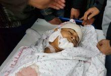 Photo of اسرائیل کی جارحیت، 8 سالہ فلسطینی بچہ شہید